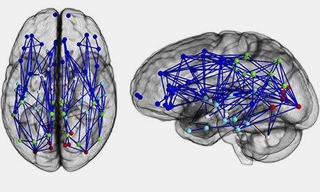 brain sex differences hemispheric specialization research in Colorado
